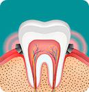 重度歯周病の抜歯回避