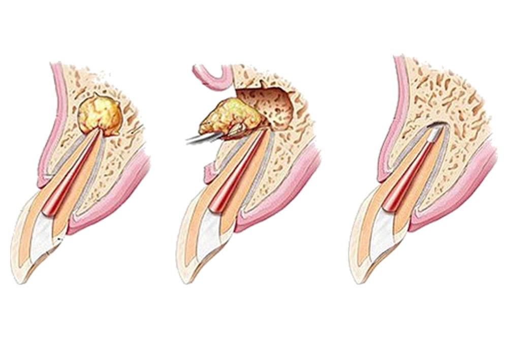 歯根端切除術や再植