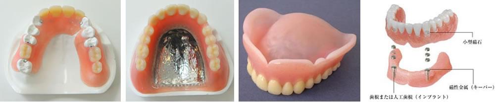 豊富な入れ歯