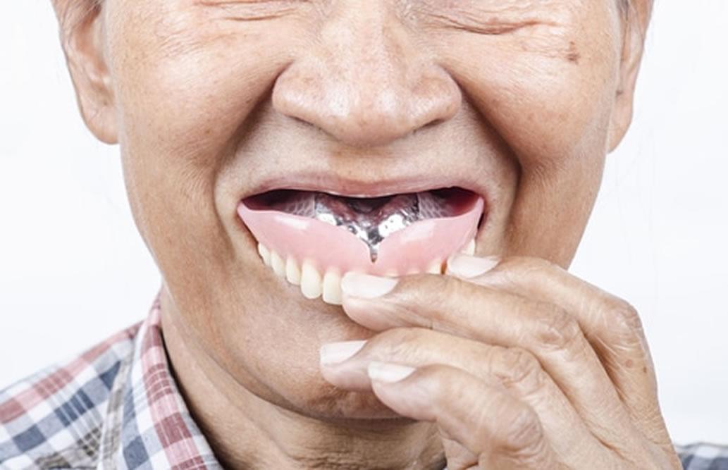 無理のない入れ歯の着脱