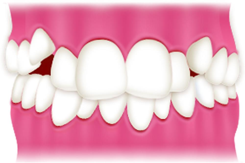 凸凹な歯並び(叢生)