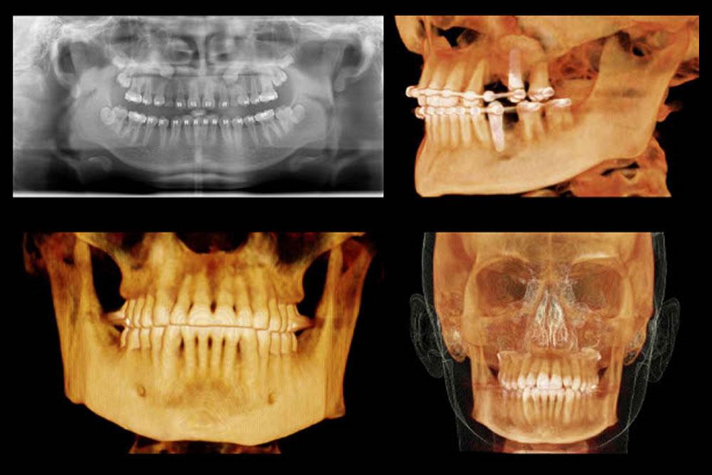 抜歯後の痛み・腫れ